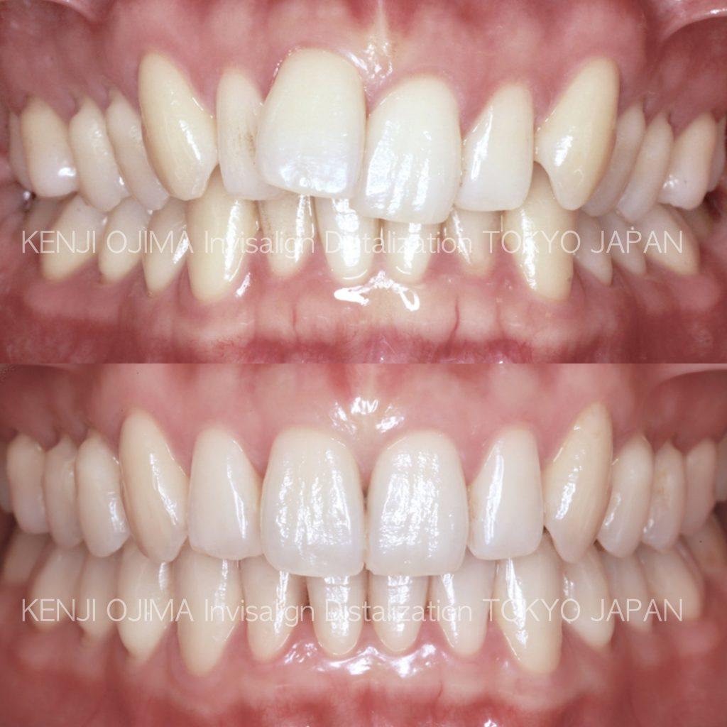前歯のガタガタのインビザライン矯正治療