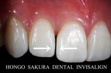 $インビザライン 治療 ブログ-インビザライン 東京都 矯正歯科