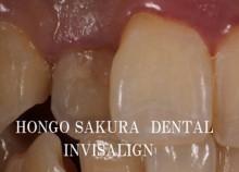 $インビザライン 治療 ブログ-東京都 歯科 矯正 インビザライン