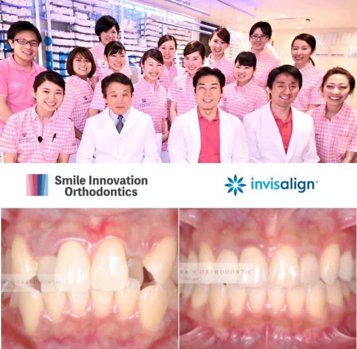 <インビザライン治療例のご紹介>本郷さくら矯正歯科