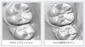 精密・正確な歯形を基にシュミレーションが可能