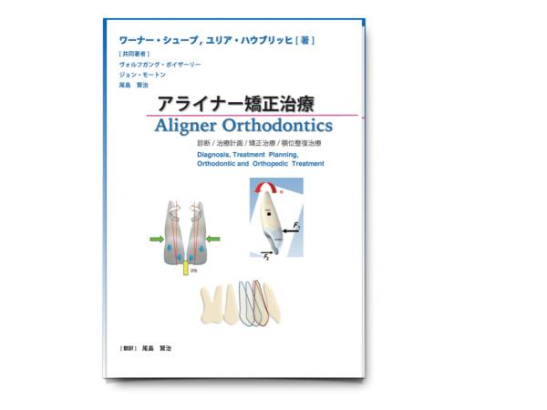 alignerbook
