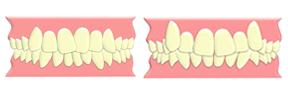 前歯のガタガタ・でこぼこ、八重歯の矯正歯科治療したい