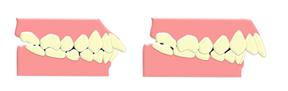 見えない矯正装置で出っ歯(上下顎前突)を治したい