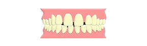 すきっ歯(隙間)